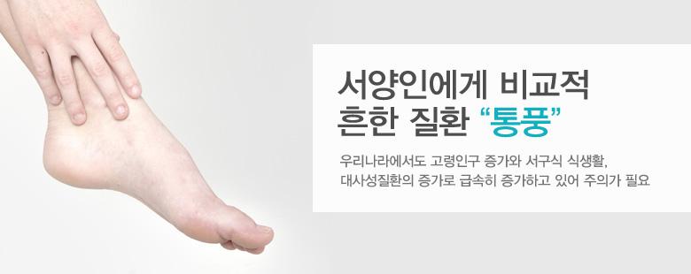 """서양인에게 비교적 흔한 질환 """"통풍"""""""